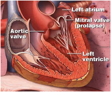 Mitral Valve Surgery