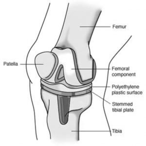 best knee replacement surgeons in India