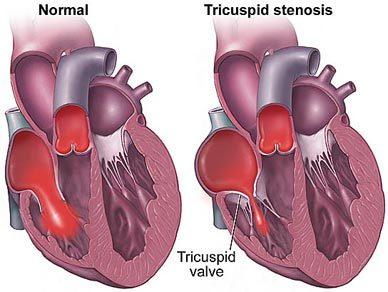 tricuspid valve stenosis